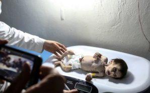 الحصار يحصد مزيدا من أرواح الأطفال في الغوطة الشرقية